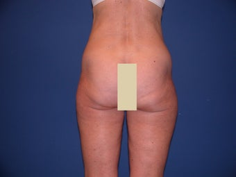 Thigh Liposculpture before 66003