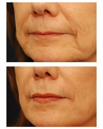 Juvederm before 301155