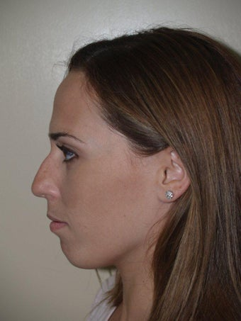 Rhinoplasty before 229068