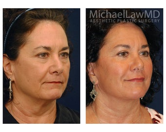 Lower Face and Neck Lift after 391575