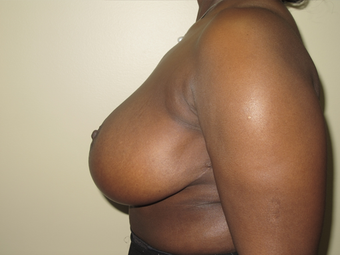 Breast Reduction 410405