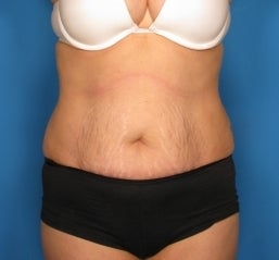 Abdominoplasty before 464709