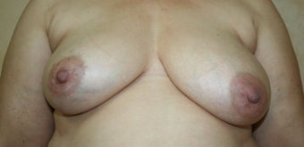 Breast Reconstruction before 526415