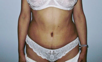 Abdominoplasty after 317116