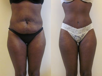 Tummy tuck before 258629