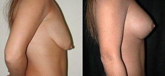 Breast Lift and Augmentation before 110087