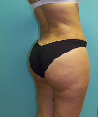 Brazilian Butt Lift- Fat Transfer 372638