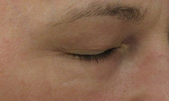 Fraxel re:pair Blepharoplasty for excess eyelid skin