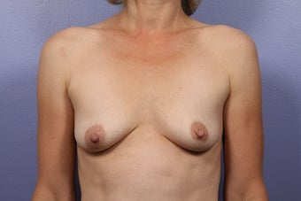 Breast Lift / Breast Augmentation before 291167