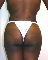 Liposuction and Buttock augmentation after 577820