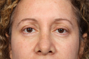 Eyelid Surgery  after 306456