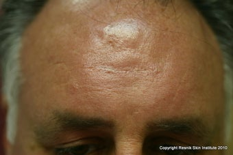 Forehead scar revision with simple excision