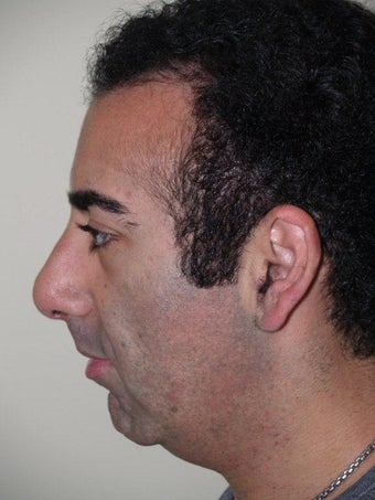 Rhinoplasty and chin augmentation with implant