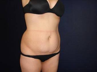 Abdominoplasty with liposuction of flanks before 300372