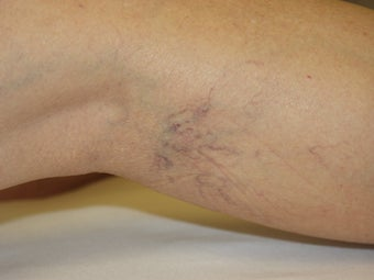 Laser vein removal on legs before 167722