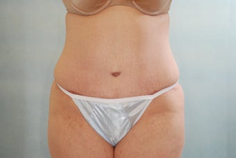 Abdominoplasty (Tummy Tuck) after 220180