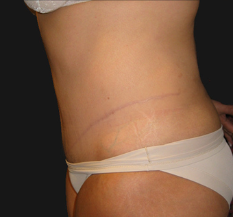 Abdominoplasty 458935