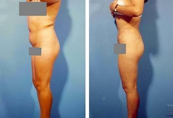 Liposuction before 636220