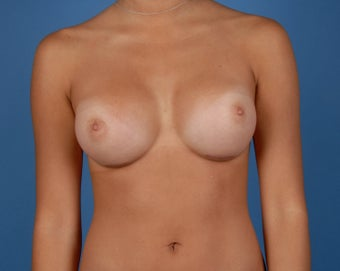 Breast Augmentation after 216693