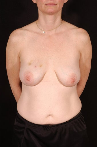 Breast Reconstruction before 164813