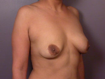 Breast Lift / Breast Augmentation  before 291026