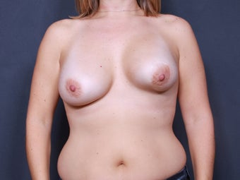 Breast Implant Revision before 461510