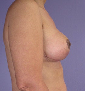 Breast Reduction after 285315