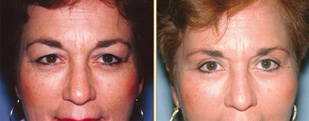 Eyelid Surgery before 271174