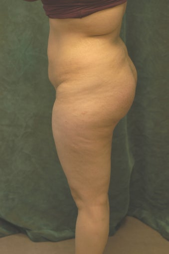 Buttocks Augmentation after 518110