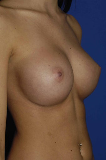 Silicone Breast Augmentation after 546429