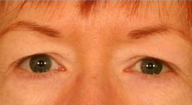 Upper Blepharoplasty (Upper Eyelids) before 376859