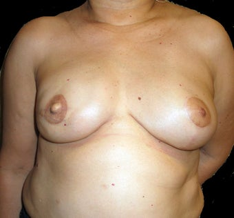 Breast Reconstruction - Left reduction, right silicone after 476711