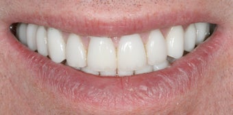 Porcelain crowns and porcelain veneers after 486463