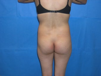 Brazilian buttock augmentation before 163643