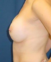 Breast augmentation with mastopexy after 101313