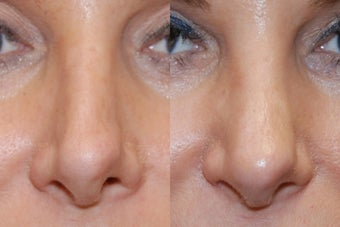 Non-Surgical Rhinoplasty with Silikon-1000 before 164130
