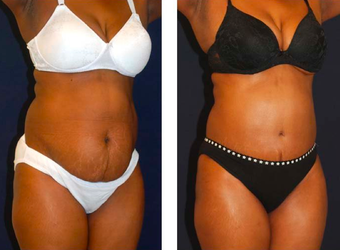 Tummy Tuck / Abdominoplasty   before 283256