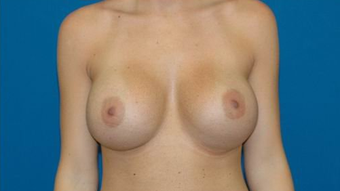 Breast Augmentation after 600680
