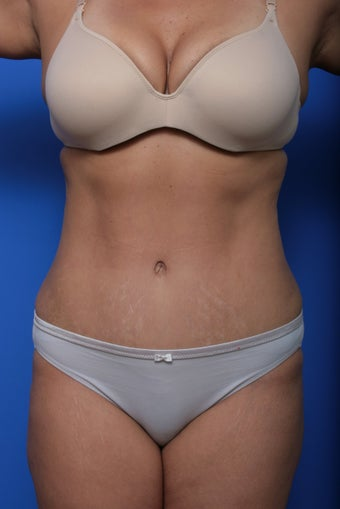 Abdominoplasty after 615679
