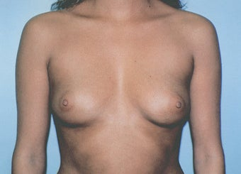Breast Augmentation - Small B Cup to Small D Cup before 297500