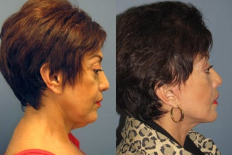 Lite Lift, neck lift, eyelid lift after 523456