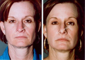 Non-Surgical Face Lift- Exoderm  before 242964