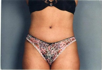 Tummy Tuck after 215126