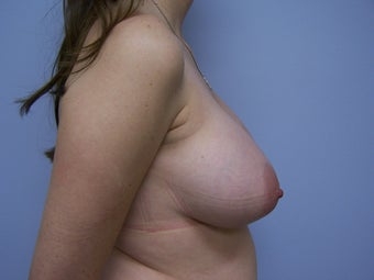 Breast Implant removal and breast lift before 589928