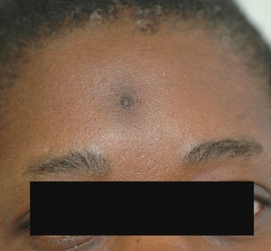 Scar Removal for Black Skin before 179173