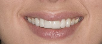 porcelain veneers after 363976