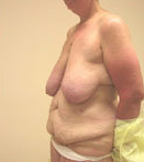 Breast Reduction Surgery and Tummy Tuck before 630993