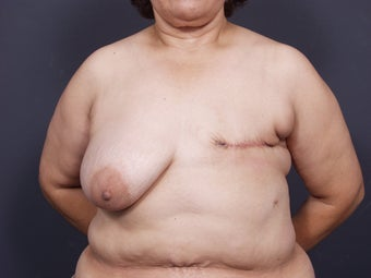 56 Year Old Female for Breast Reconstruction before 643265