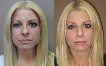 Juvederm Before and After  before 625358
