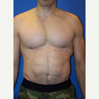 45-54 year old man treated with Pec Implants